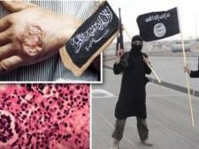Le parasite meurtrier qui menace l'Etat islamique