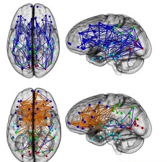 Hersenen van mannen (blauw) en vrouwen (oranje) vormen compleet verschillende connecties.