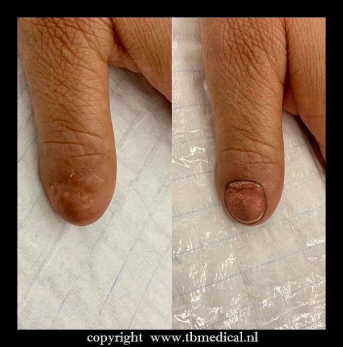 Medisch tatoeëerder Ralph Moelker kleurde een nagel in voor een patiënt.