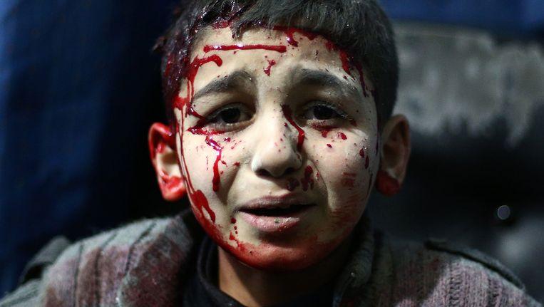 Een gewonde Syrische jongen wacht op een behandeling in een hospitaal in Douma, na luchtaanvallen door de regeringstroepen van Assad op 2 februari van dit jaar. Beeld AFP