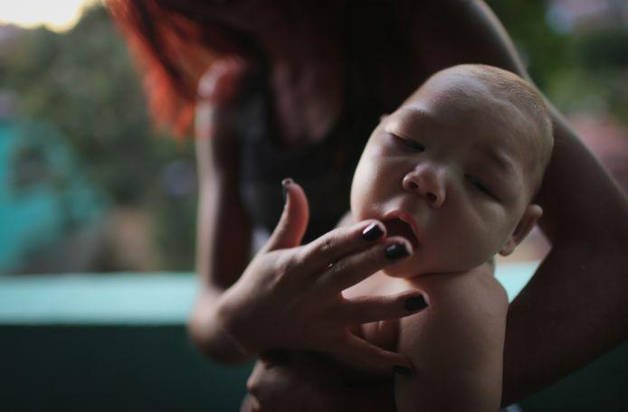 Een vijf maanden oude baby met microcefalie in Recife. De aangeboren afwijking wordt in verband gebracht met het zikavirus.