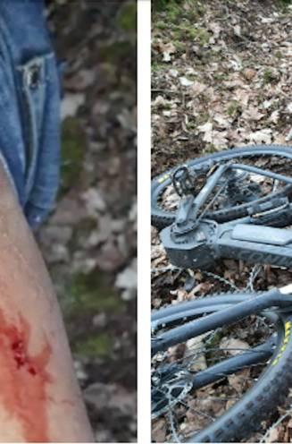 """Levensgevaarlijke prikkeldraad heeft mountainbiker beet: """"Dit is er toch compleet over"""""""