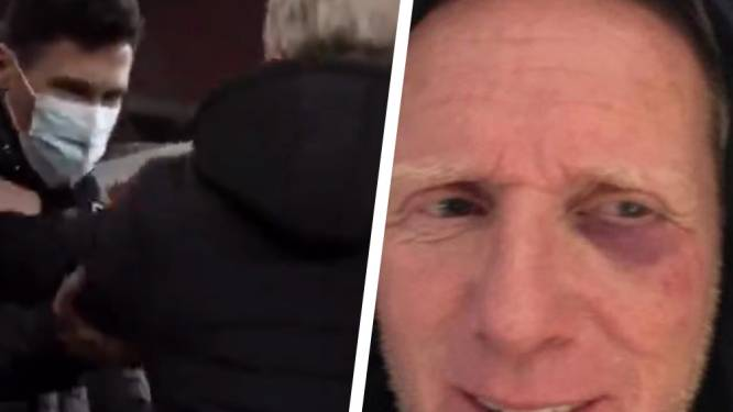 Pascal Plovie, materiaalman van Club, houdt blauw oog over aan hommeles tijdens bekerclash tegen Standard
