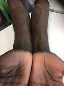 De armen van Andrin zitten vol littekens door het injecteren van 3-mmc.