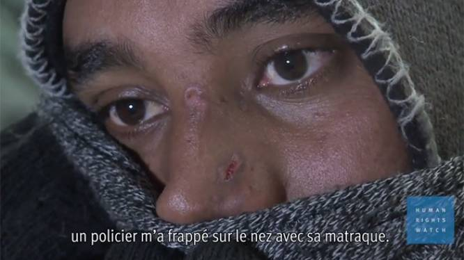 La police française accusée de maltraiter les migrants à Calais