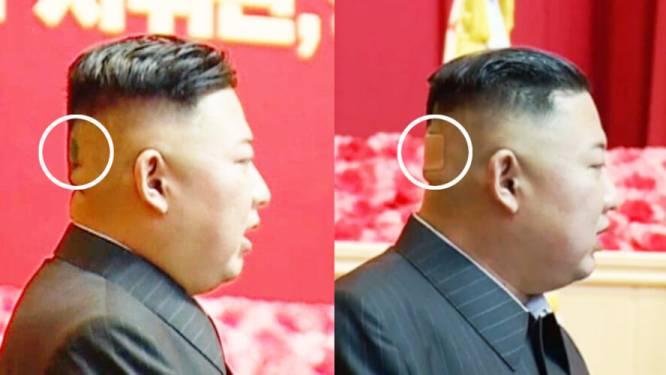 Mysterie rond gezondheid Kim Jong-un groeit verder: leider met pleister op hoofd gespot