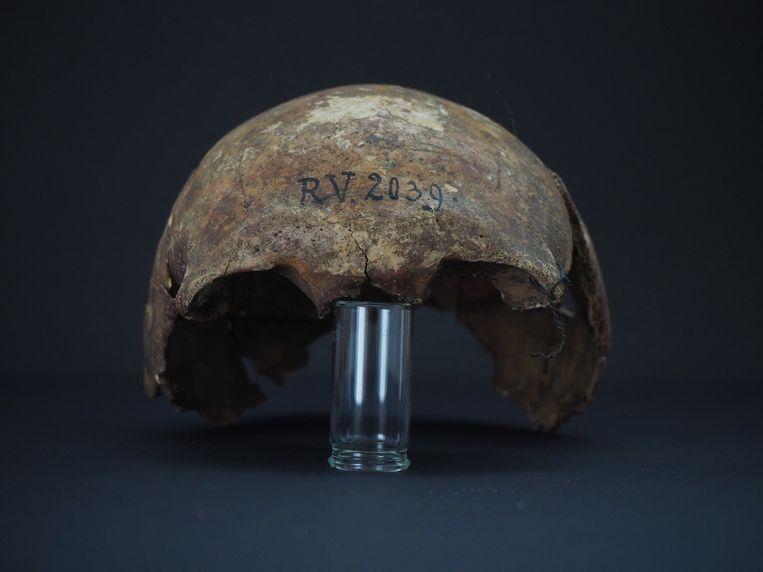 Schedel van de man die ongeveer 5.000 jaar geleden de pest had. Beeld Dominik Göldner, BGAEU