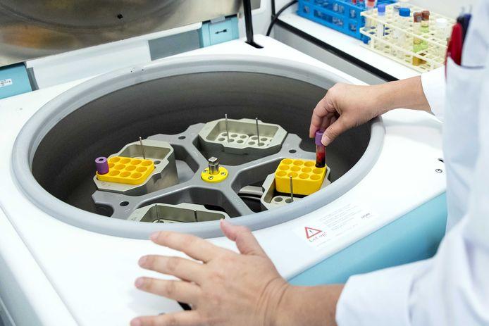 Serologisch onderzoek naar antistoffen in bloed in het lab van ziekenhuis.