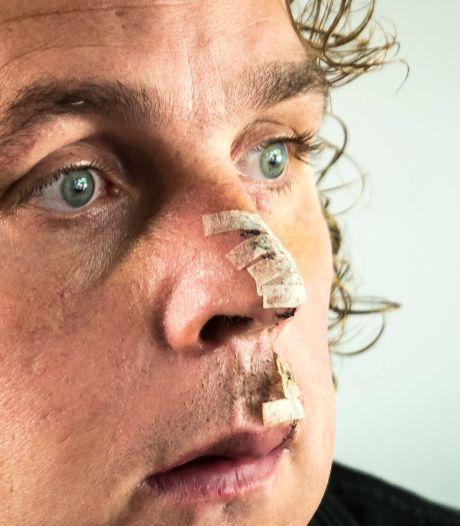 Beveiliger Niels is voortaan 'de man met het litteken'