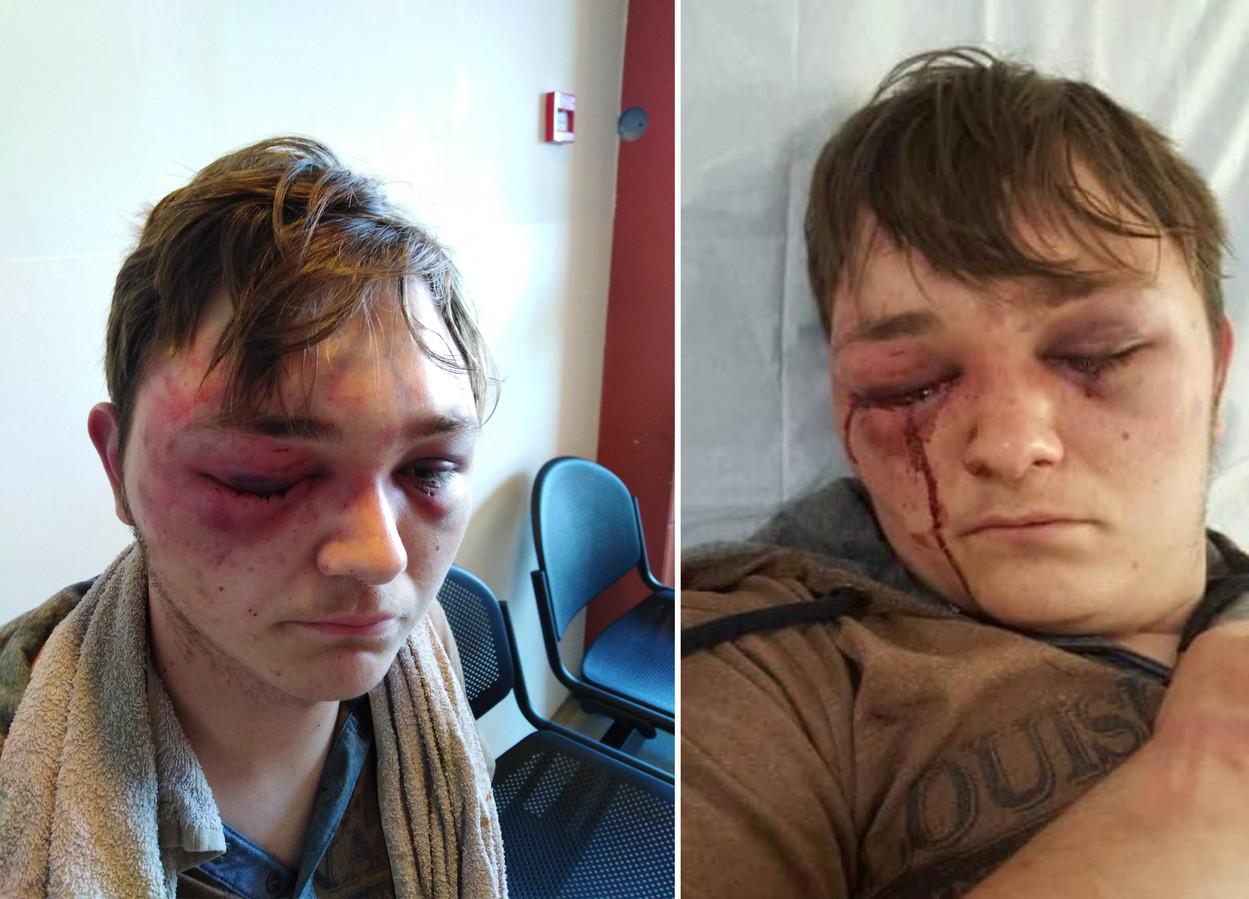 Dans la nuit du 24 au 25 juin 2019, Dorian a été séquestré, torturé et presque violé à Fosses-la-Ville.