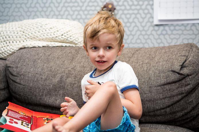 Briek is geboren met een uiterst zeldzame aandoening.