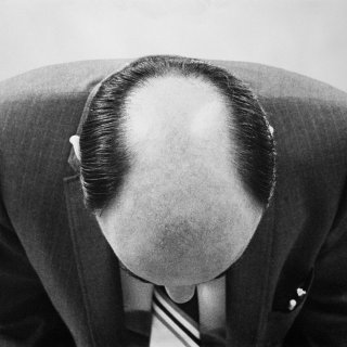 waarom-mannen-kaal-worden-volgens-een-vast-patroon-en-hoe-castratie-dit-proces-tegen-kan-gaan
