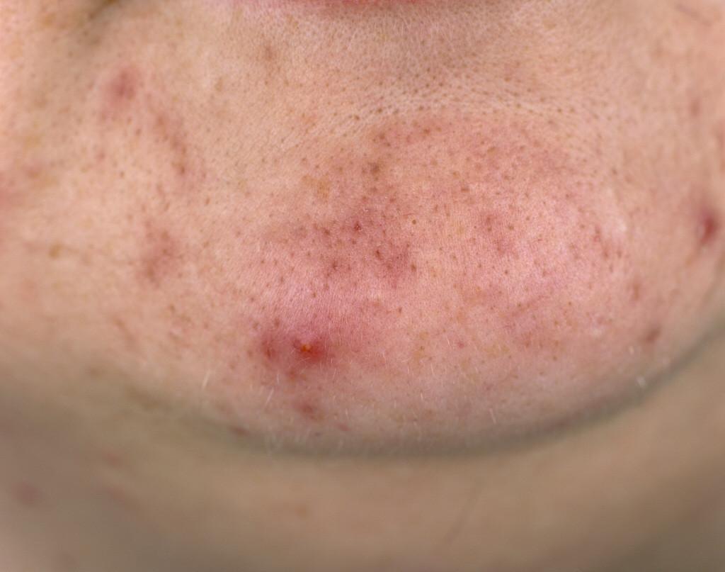 Wie er gevoelig voor is, zou door het dragen van mondkapjes zomaar weer puistjes op zijn kin tegen kunnen komen.