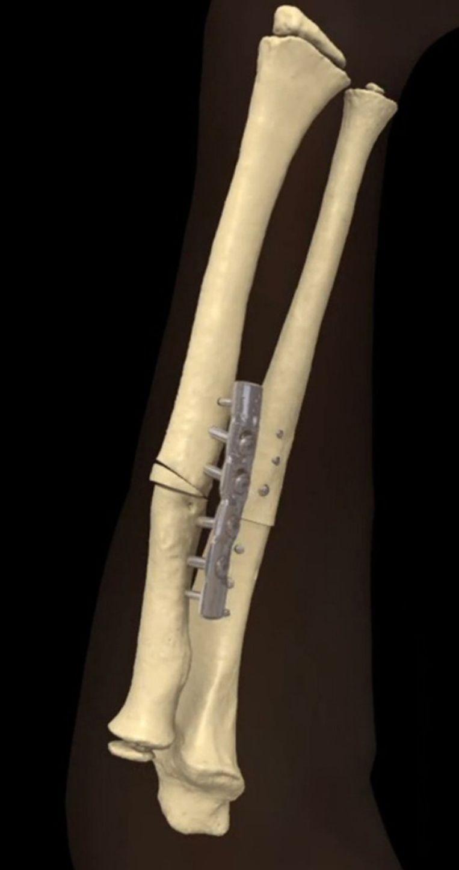 Dankzij geprinte 3D-mallen en een eveneens geprint verbindingsplaatje weet de chirurg perfect hoe hij dat laatste op de gescheurde botten van de patiënt moet aanbrengen.