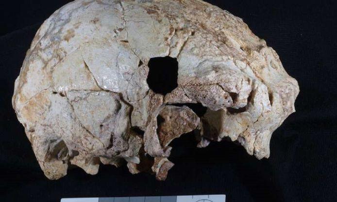 De 400.000 jaar oude schedel Aroeira 3.