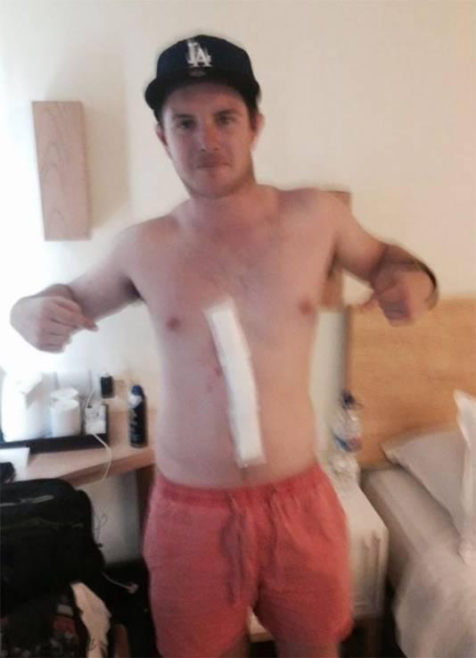 Dylan Thomas na de operatie waarbij de boosdoener van het brandblaarachtige spoor uit zijn lichaam werd verwijderd.