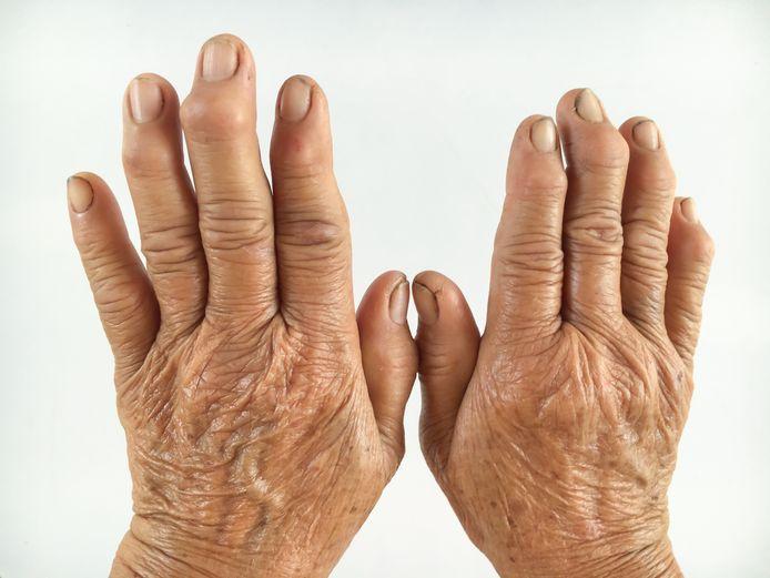 Artrita artroze bursită
