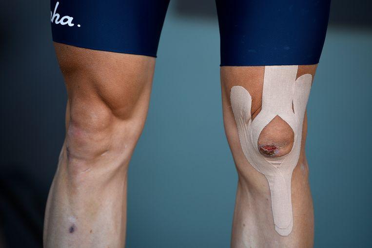 Voor de start van de Scheldeprijs gisteren: de knie van Vanmarcke - nog steeds met zichtbare wonde - stevig ingetapet.