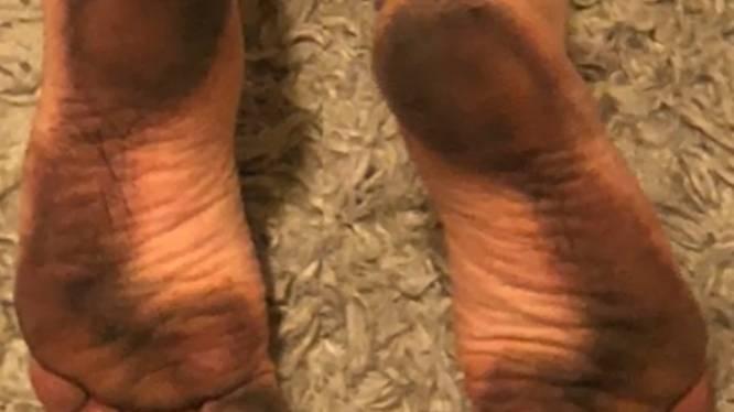 """""""Dit is ongezien"""": Miljoenen dode insecten kleuren voeten van Amerikaanse strandgangers zwart"""