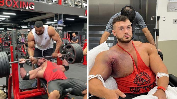 Le bodybuilder Ryan Crowley s'est déchiré le pectoral en soulevant un haltère dans une salle de sport à Dubaï.