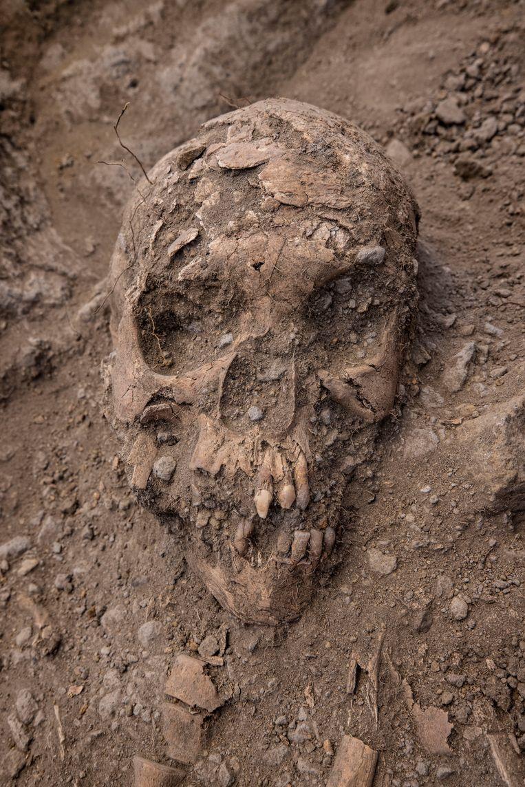 Gevijlde voortanden zijn een aanwijzing dat de begravene rechtstreeks uit West-Afrika moet zijn gehaald door slavenhandelaren. Beeld Secar