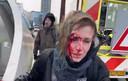 Met een bebloed gezicht loopt Denisa Štastná richting station nadat ze door een waterstraat is geraakt.
