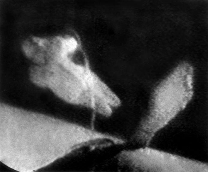 Russische tv-beelden van Leonovs ruimtewandeling in maart 1965.