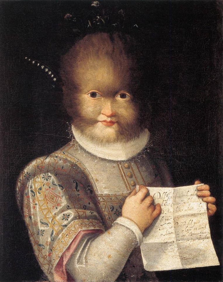 Lavinia Fontana portretteerde Antonietta Gonzalez, een meisje met 'weerwolfsyndroom'. Haar vader was in opdracht van de Franse koning Henry  uit de Canarische eilanden meegenomen naar Frankrijk. De vader en Antonietta's twee zussen hadden alle het syndroom hypertrichosis. Op het briefje in haar hand staat dat de familie thuis vond rond het hof van Isabella Pallavicina, de markiezin van Soranga, in Parma. 1595, Musée du Château, Blois. Beeld Alamy