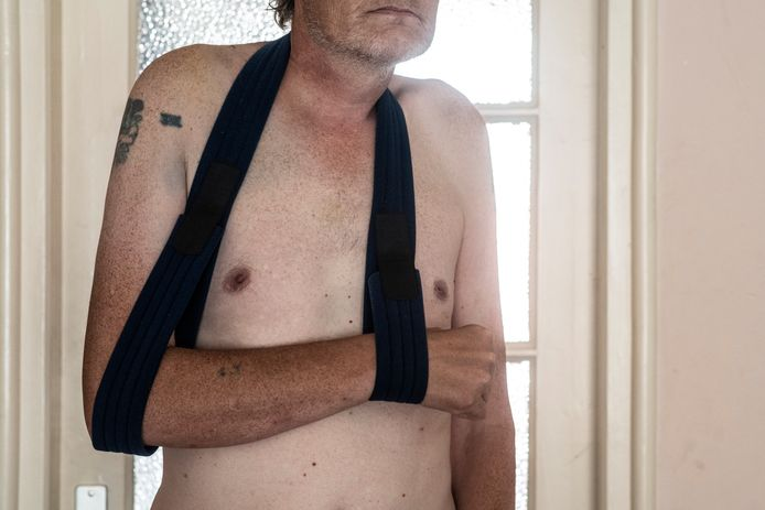 Alex (55), vlak na de mishandeling.