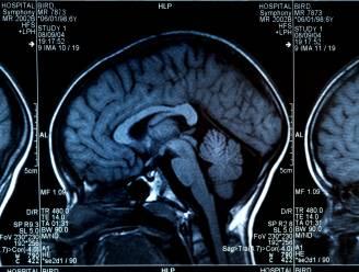 Mysterieuze hersenziekte stelt Canadese artsen voor raadsel