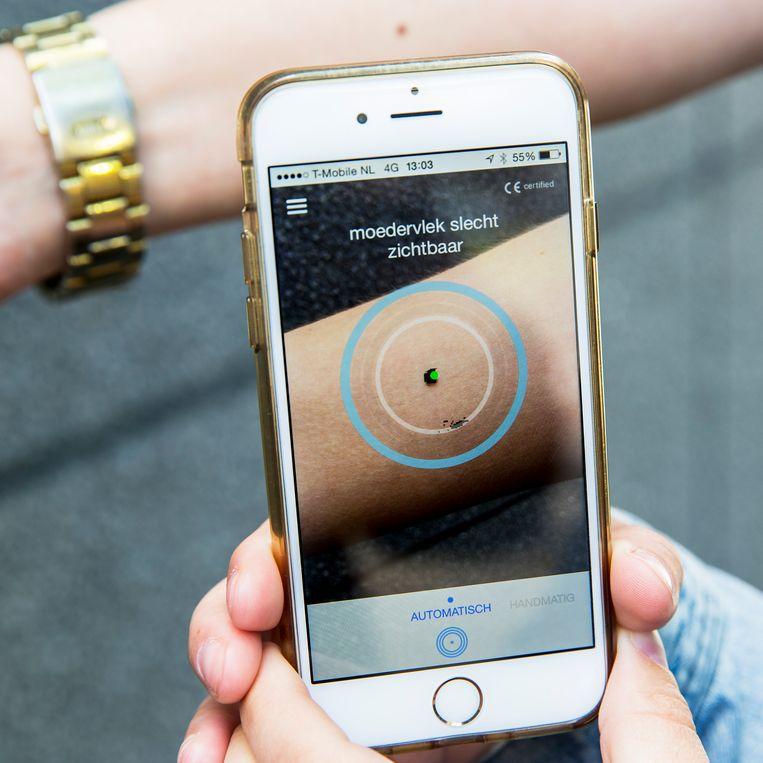 Een willekeurig voorbeeld van een gezondheidsapp: een gratis app op je smartphone analyseert je moedervlek.