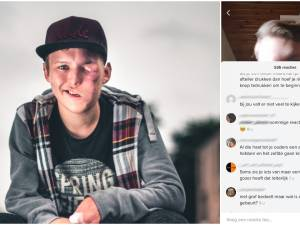 """""""Ben je te lang op de barbecue blijven liggen?"""": zwaar verminkte Joeri plaatst TikTok-filmpje en krijgt meteen lading giftige reacties"""
