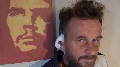 """Thijs (39) wordt rechteroor afgebeten tijdens uitgaan in Kaapverdië. """"Ik ben precies Van Gogh. Zoek daar maar eens werk mee"""""""