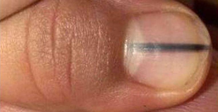 zwarte streep op nagel