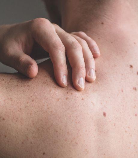 Le nombre de cancers de la peau, le plus courant en Belgique, augmente trop rapidement