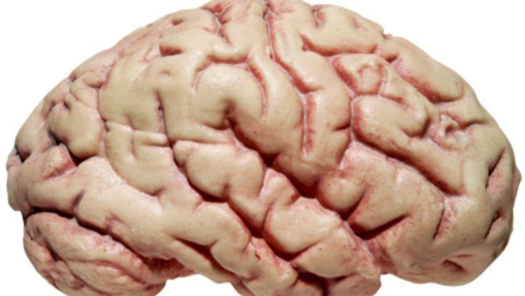 Hersenverbindingen Houden Het Geheugen Scherp Trouw