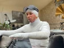 """""""Je me suis réveillé à l'hôpital"""", le styliste français Olivier Rousteing révèle son douloureux secret"""