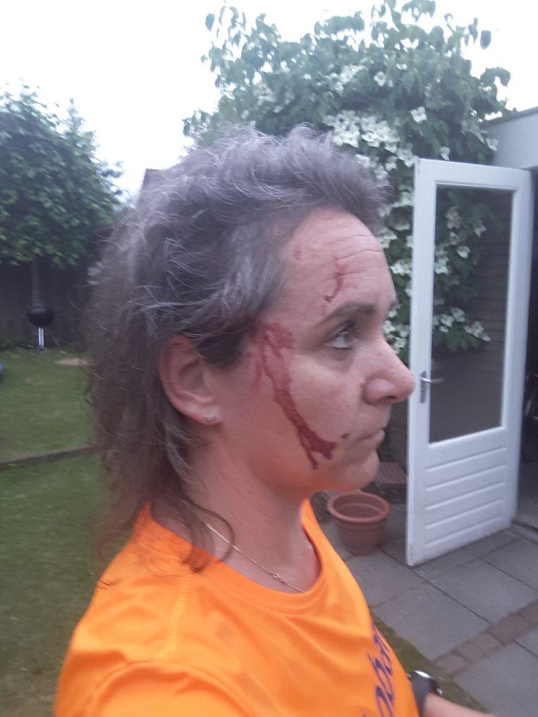 Suzanne van Vugt is aangevallen door een roofvogel in Heukelom (Noord-Brabant).