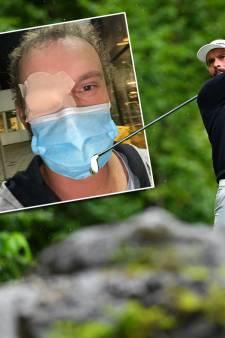 Luiten met beschadigd oog in Engeland: 'Het ziet er met ooglapje en mondkapje erger uit dan het is'