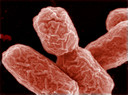 E. Coli-bacterie