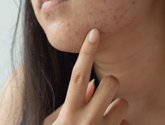 Acne, eczeem of littekens: 1 op 2 mensen ter wereld kampt met huidproblemen