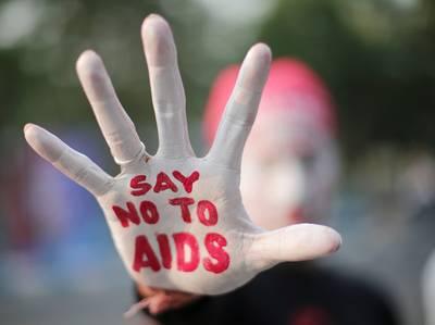 Genezing hiv stap dichterbij: wetenschappers bereiken doorbraak