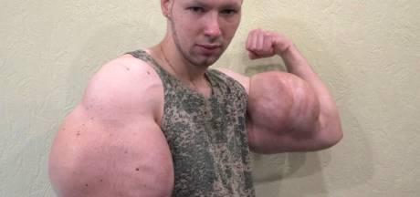 Russische MMA-vechter met megabiceps vreest armen te verliezen: 'Ik ben erg bang'