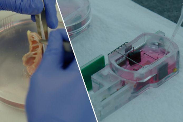 Onderzoekers van het Erasmus MC ziekenhuis in Rotterdam zijn erin geslaagd stukjes menselijk hartweefsel in het laboratorium opnieuw te laten kloppen.