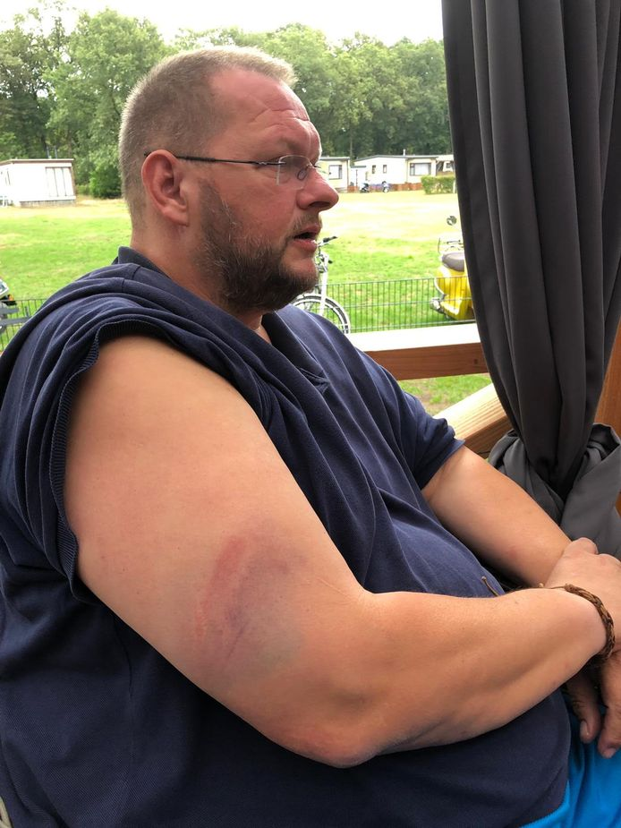 De dag na Vitesse-PEC Zwolle in Arnhem. De bloeduitstorting die Freddy Eikelboom naar eigen zeggen opliep na een klap met de knuppel van een agent.