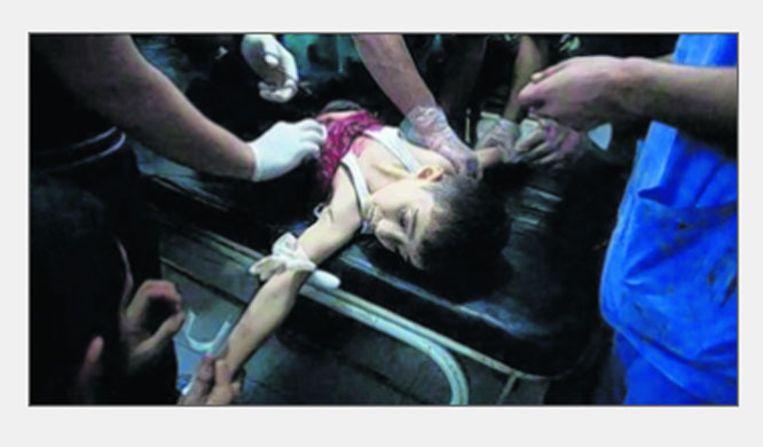 Dit beeld van een gewond jongetje in Donetsk schokte veel Russen. Maar het was in Aleppo. Beeld Russische propaganda