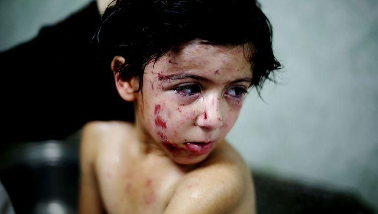 Dit Palestijns kind raakte gisteren gewond bij een Israëlische aanval op een vluchtelingenkamp. Beeld GETTY