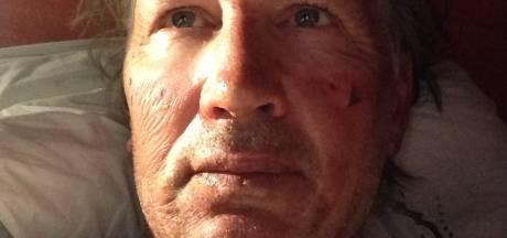 Bekende Twentse schrijver gewond door benzine-explosie