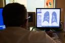 Een arts bekijkt de longfoto van een Covid-19-patiënt.
