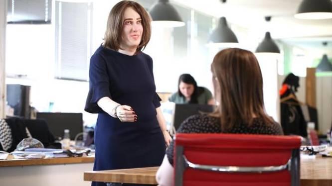 Het toekomstig uiterlijk van kantoorpersoneel: bochel, vooruitstekende buik en spataderen